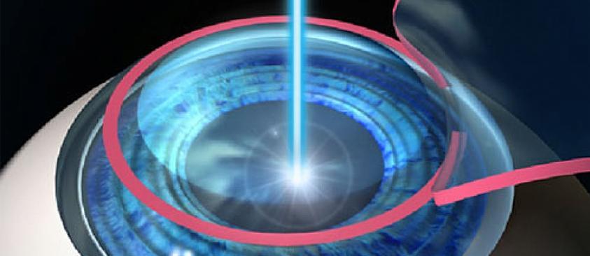 Cirurgia Refrativa Laser